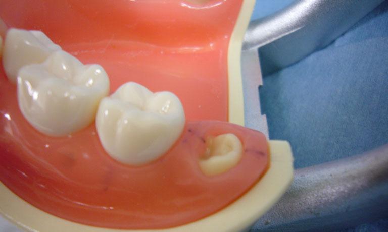 埋伏智歯(模型)